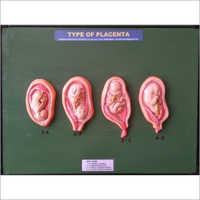 Type Of Placenta