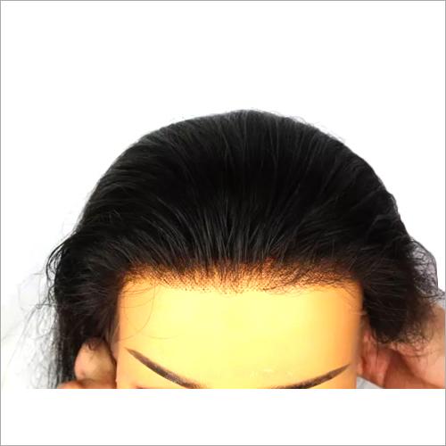 Lace Closure Hair