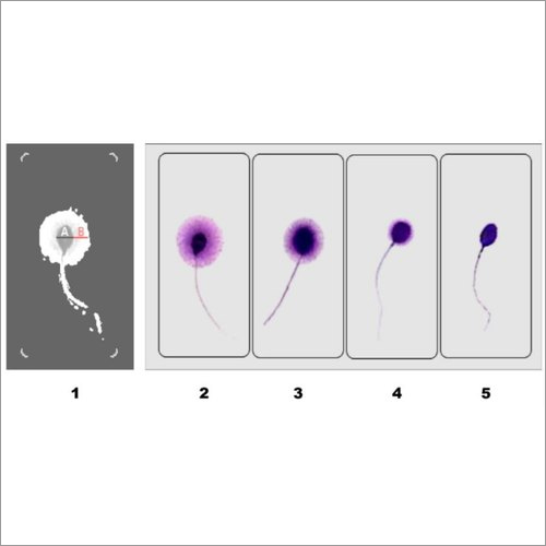 Sperm DNA Fragmentation Test