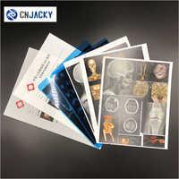 Medical Radiation Laser Printing Film for Hospital Use