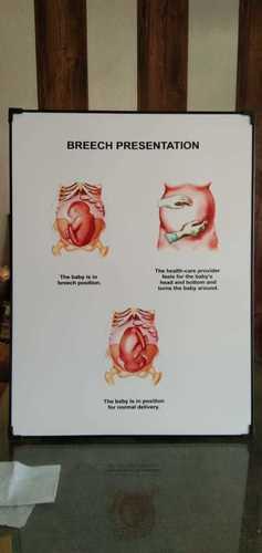 Chart of Breech Presentation