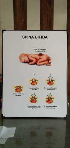 Chart of Spina Bifida