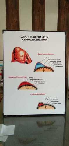 Chart of Caput Succedaneum Cephalhaematoma