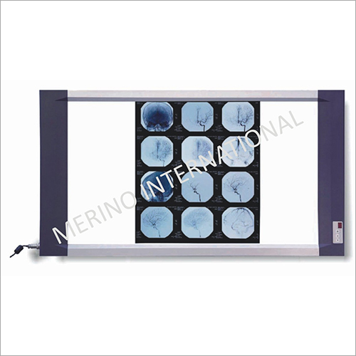 X Ray Film Viewer Led