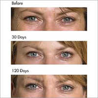 Chemical Peels Skin Treatments