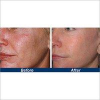 Micro Dermabrasion Skin Polish