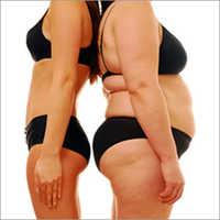 Cryolipolysis Slimming Treatment