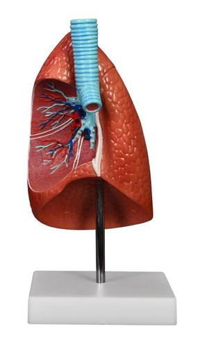 ConXport Lung Model 1 Part