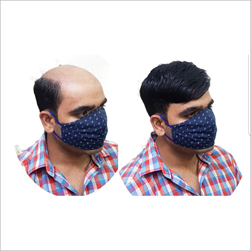 Hair Replacement Centre In Delhi